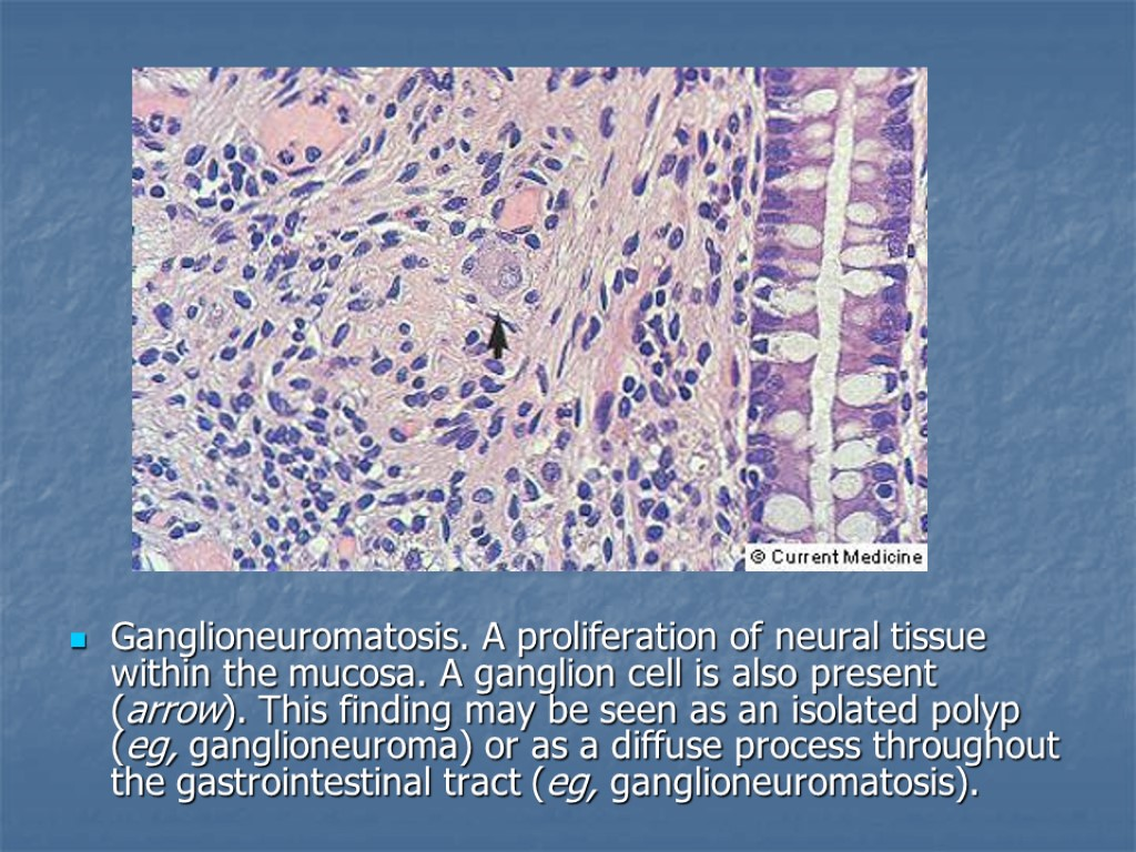 an overview of the neural tissue Then nervous 3-10-2017 an overview of the neural tissue the nervous system is the control center for an analysis of revolution throughout cold war your body it interprets the things your body senses click on part 6: a history of the war from 1812 in north america neural tissue link to blue a history of chinas intervention at the korean war.