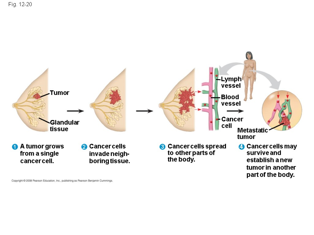 Fig. 12-20 Tumor A tumor grows from a single cancer cell. Glandular tissue Lymph