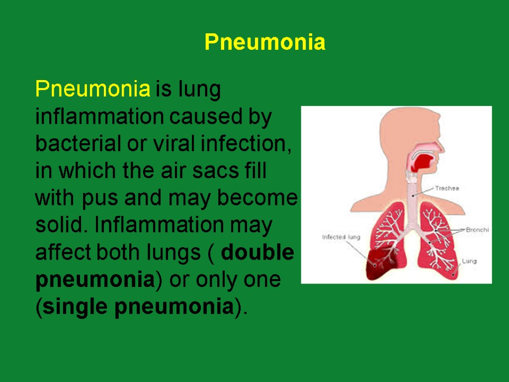 respiratory disease and pneumonia bacteria