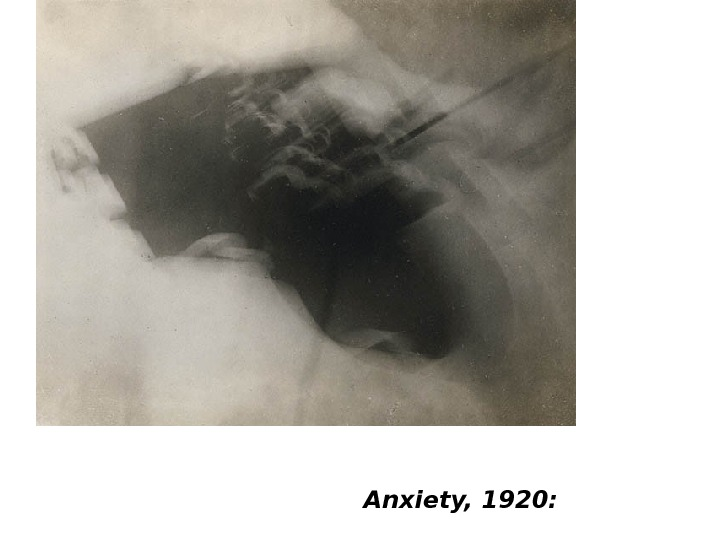 Anxiety, 1920: