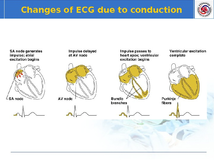Changes of ECG due to conduction