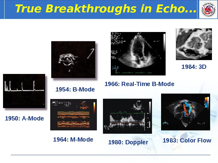 1966: Real-Time B-Mode. True Breakthroughs in Echo. . . 1950: A-Mode 1954: B-Mode 1964: M-Mode 1984: