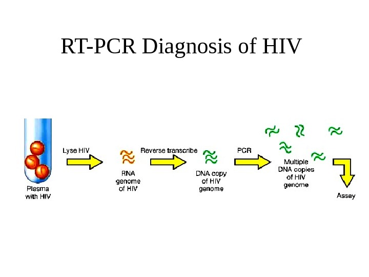 RT-PCR Diagnosis of HIV