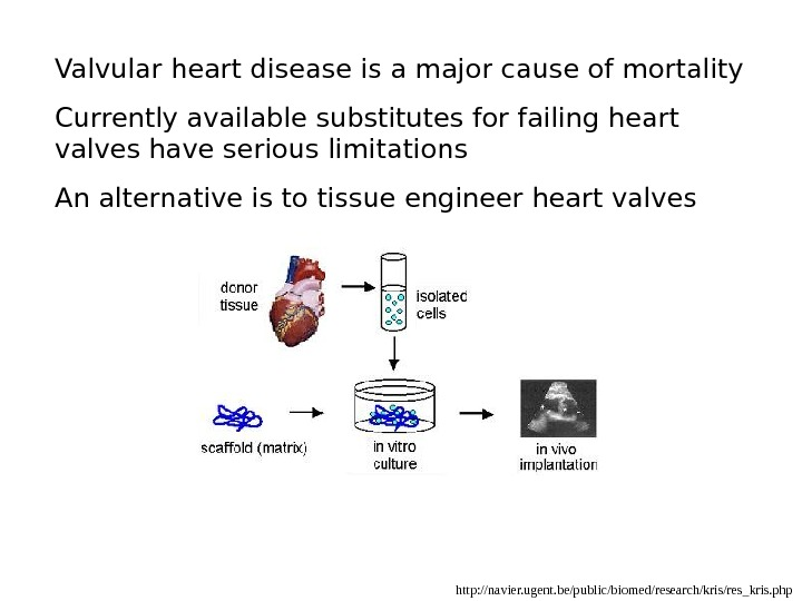 http: //navier. ugent. be/public/biomed/research/kris/res_kris. php. Valvular heart disease is a major cause of mortality