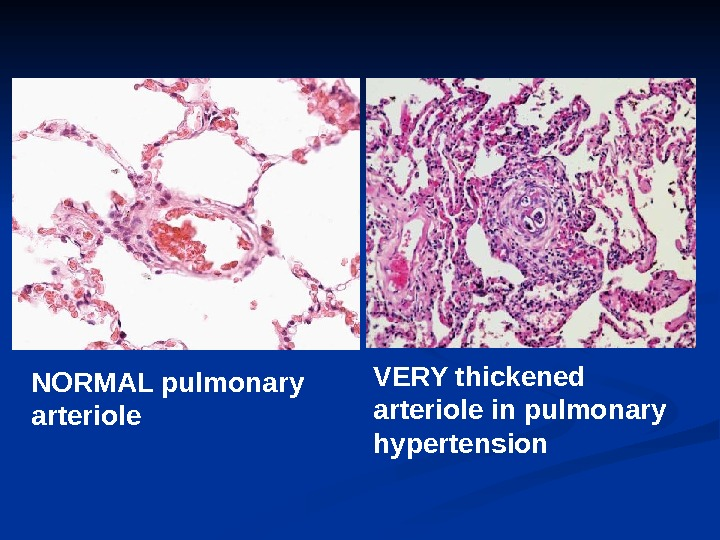 VERY thickened arteriole in pulmonary hypertension. NORMAL pulmonary arteriole