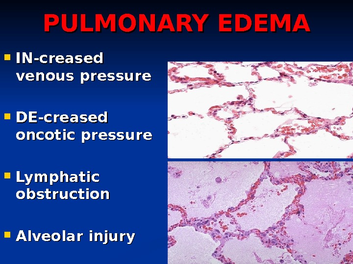 PULMONARY EDEMA IN-creased venous pressure DE-creased oncotic pressure Lymphatic obstruction Alveolar injury