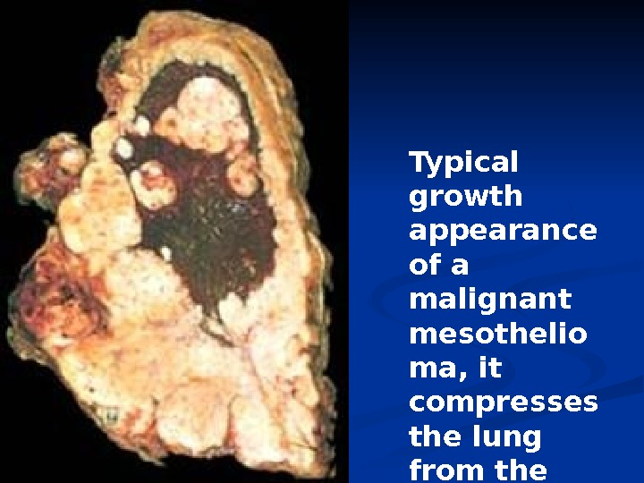 Typical growth appearance of a malignant mesothelio ma, it compresses the lung from the OUTSIDE.