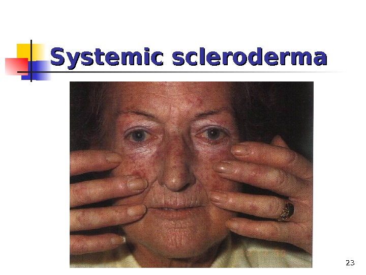 23 Systemic scleroderma