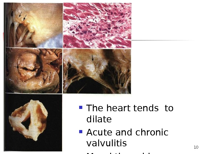 10 The heart tends to  dilate Acute and chronic valvulitis Mural thrombi