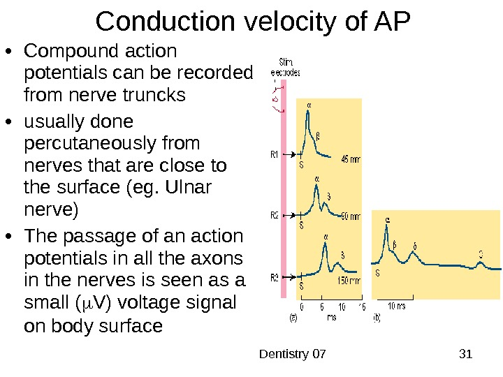 Dentistry 07 31 Conduction velocity of AP • Compound action potentials can be recorded from