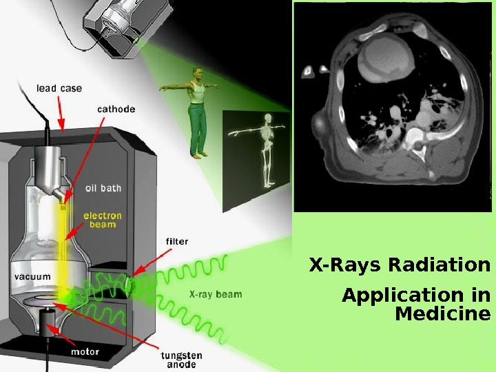 X-Rays Radiation Application in Medicine