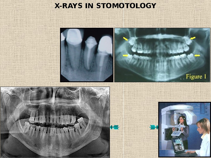 X-RAYS IN STOMOTOLOGY