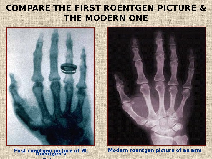 First roentgen picture of W.  Roentgen's  wife's arm. COMPARE THE FIRST ROENTGEN PICTURE &