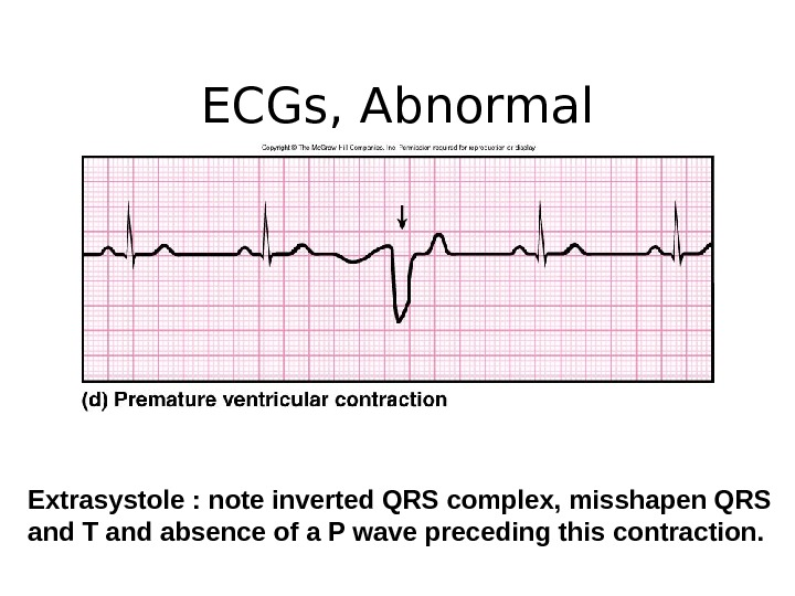 ECGs, Abnormal Extrasystole : note inverted QRS complex, misshapen QRS and T and absence of a