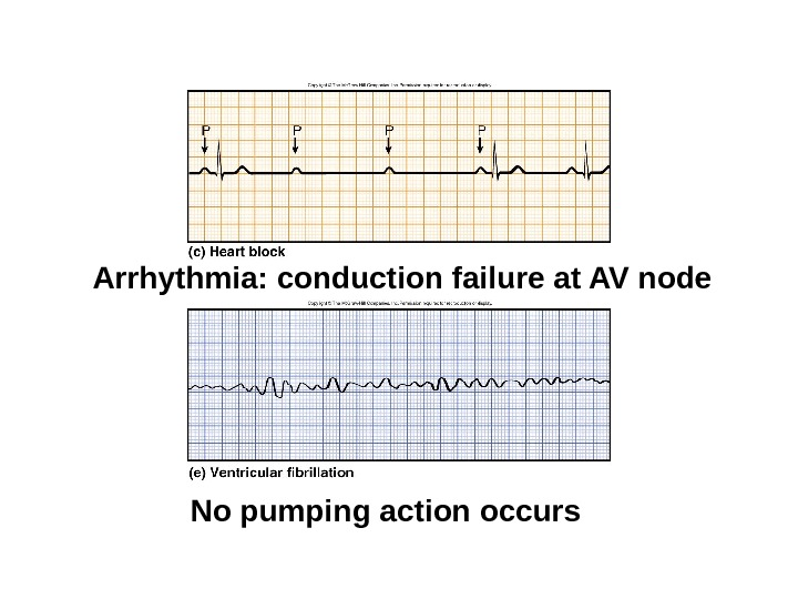 ECGs, Abnormal Arrhythmia: conduction failure at AV node No pumping action occurs