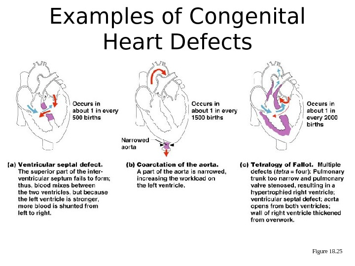 Figure 18. 25 Examples of Congenital Heart Defects