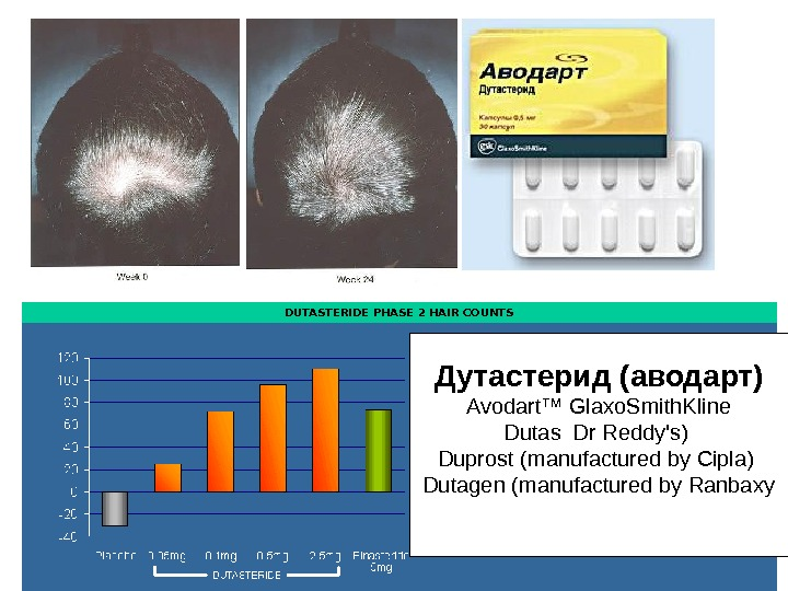 DUTASTERIDE PHASE 2 HAIR COUNTS      Дутастерид (аводарт) Avodart™ Glaxo. Smith. Kline