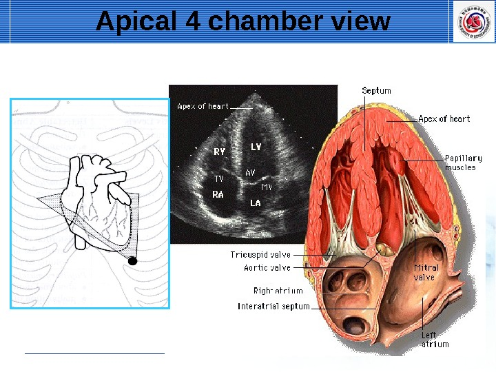 Apical 4 chamber view