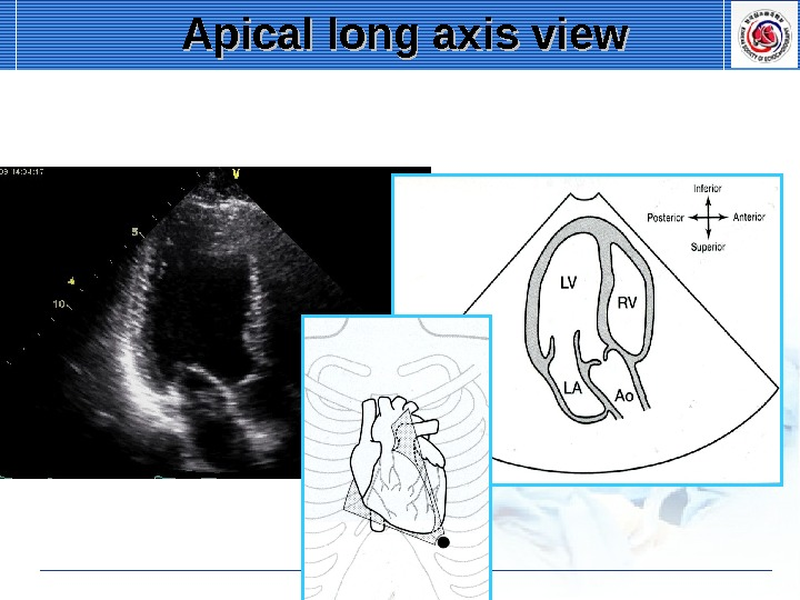 Apical long axis view