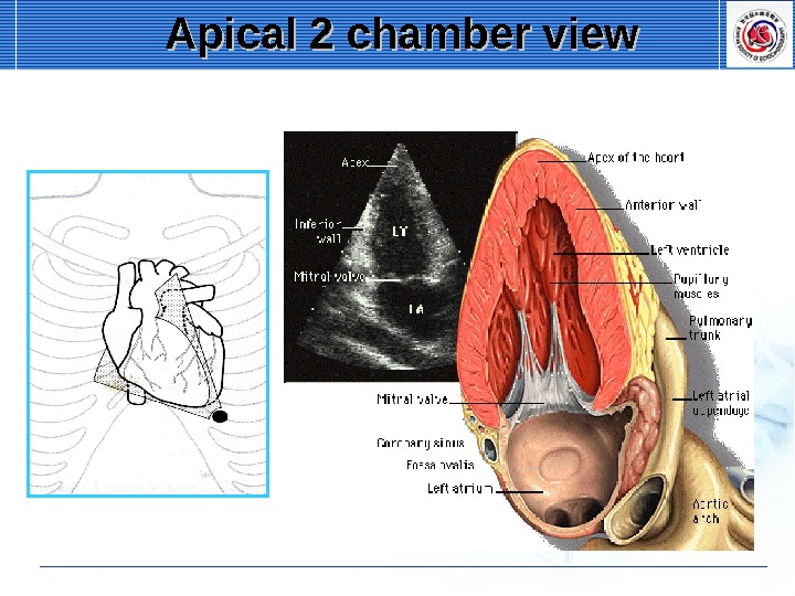 Apical 2 chamber view