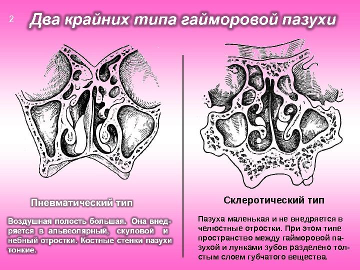 Склеротический тип Пазуха маленькая и не внедряется в челюстные отростки. При этом типе пространство между гайморовой