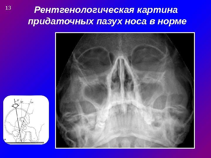 Рентгенологическая картина придаточных пазух носа в норме 13