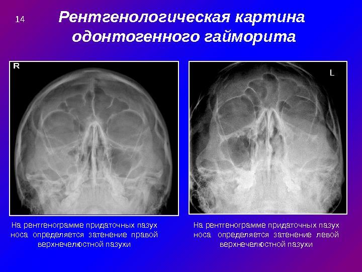 Рентгенологическая картина одонтогенного гайморита L На рентгенограмме придаточных пазух носа определяется затенение правой верхнечелюстной пазухи На