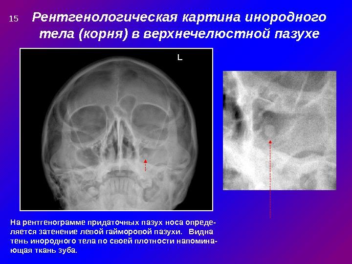 Рентгенологическая картина инородного тела (корня) в верхнечелюстной пазухе На рентгенограмме придаточных пазух носа опреде- ляется затенение