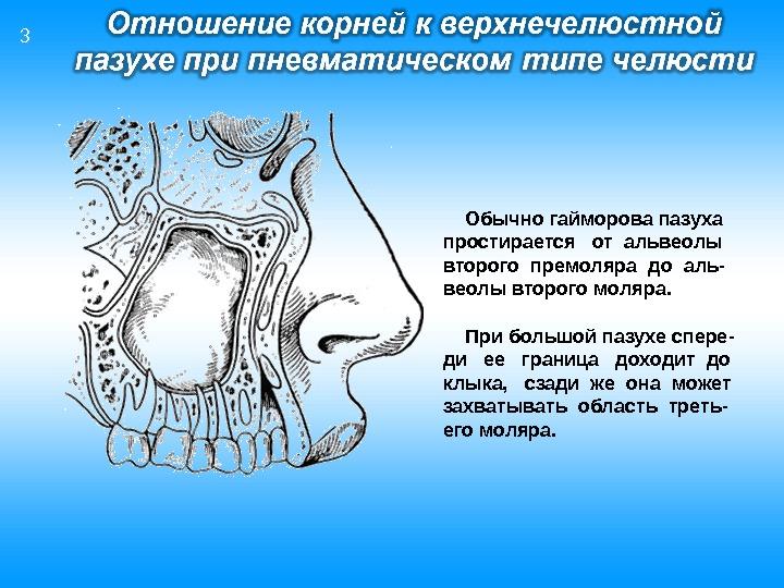 Обычно гайморова пазуха простирается  от альвеолы второго премоляра до аль- веолы второго моляра.