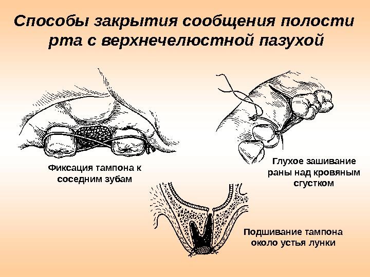 Способы закрытия сообщения полости рта с верхнечелюстной пазухой Фиксация тампона к соседним зубам Глухое зашивание раны