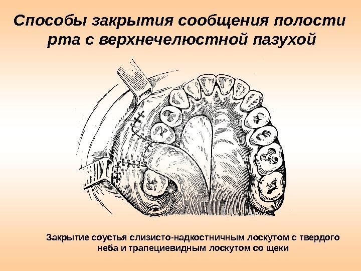 Способы закрытия сообщения полости рта с верхнечелюстной пазухой Закрытие соустья слизисто-надкостничным лоскутом с твердого неба и