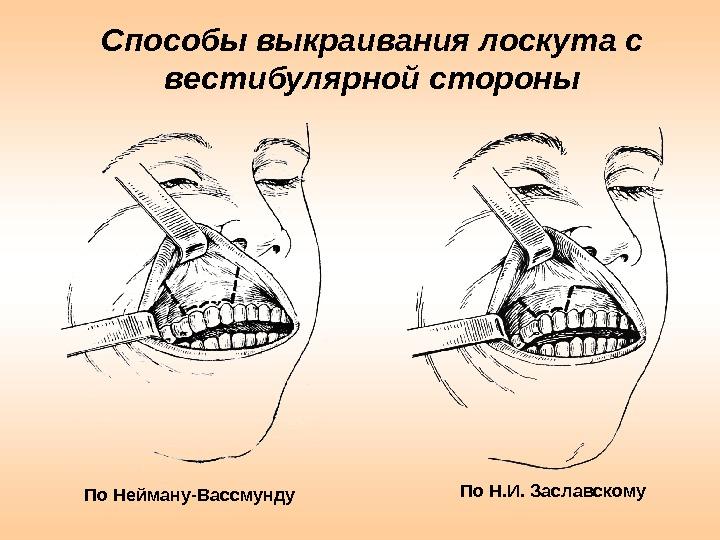 Способы выкраивания лоскута с вестибулярной стороны По Нейману-Вассмунду По Н. И. Заславскому