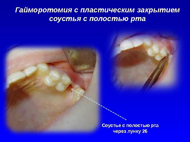 Гайморотомия с пластическим закрытием соустья с полостью рта Соустье с полостью рта через лунку 26