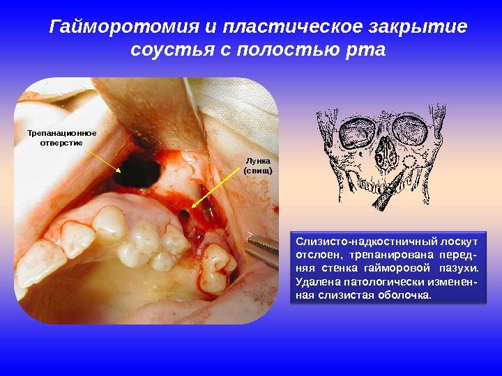 Гайморотомия и пластическое закрытие соустья с полостью рта Слизисто-надкостничный лоскут отслоен,  трепанирована перед- няя стенка