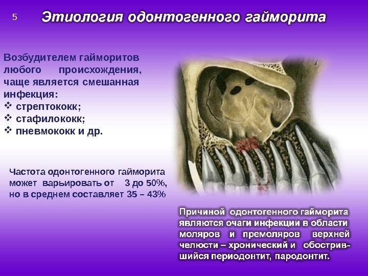 Возбудителем гайморитов любого происхождения, чаще является смешанная инфекция: стрептококк; стафилококк; пневмококк и др. Частота одонтогенного гайморита