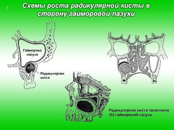 Гайморова пазуха Радикулярная киста заполнила 2/3 гайморовой пазухи 7