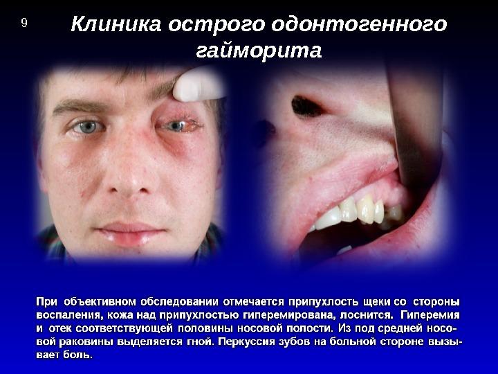 Клиника острого одонтогенного гайморита 9