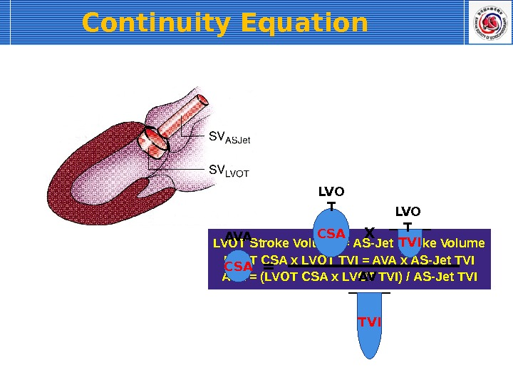 Continuity Equation  LVOT Stroke Volume = AS-Jet Stroke Volume LVOT CSA x LVOT TVI =