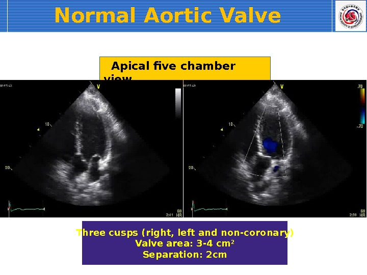 Apical five chamber view Three cusps (right, left and non-coronary) Valve area: 3 -4