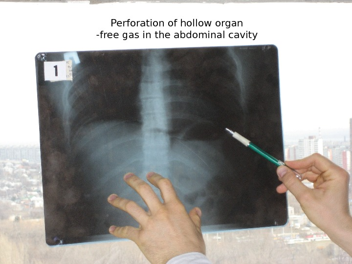 Perforation of hollow organ -free gas in the abdominal cavity