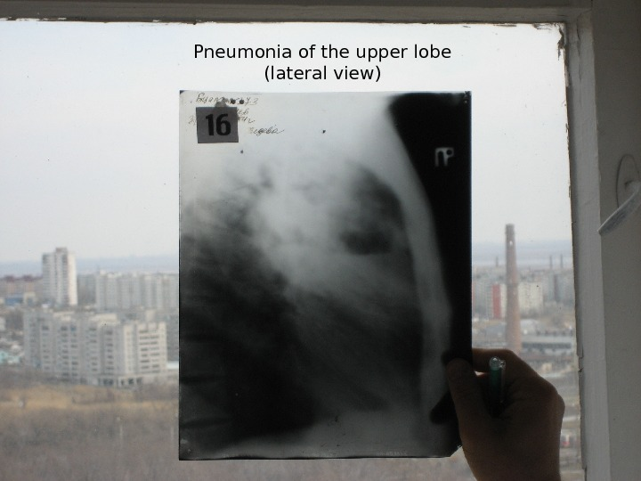 Pneumonia of the upper lobe (lateral view)