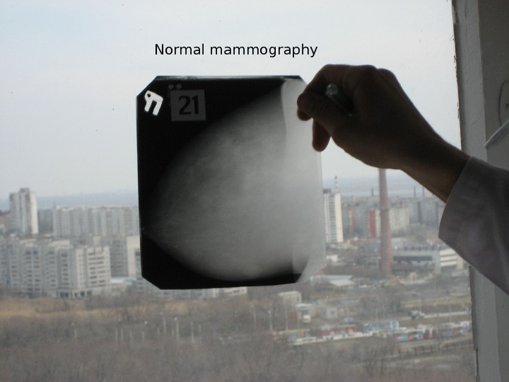 Normal mammography