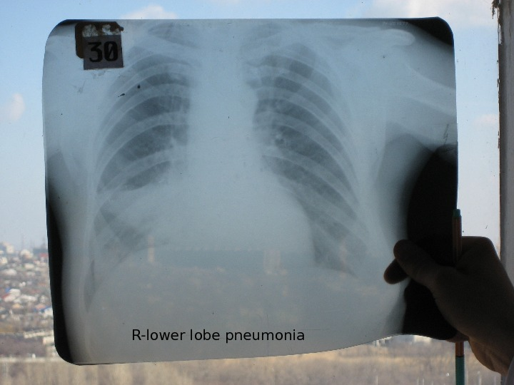 R-lower lobe pneumonia