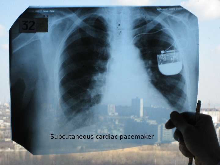 Subcutaneous cardiac pacemaker