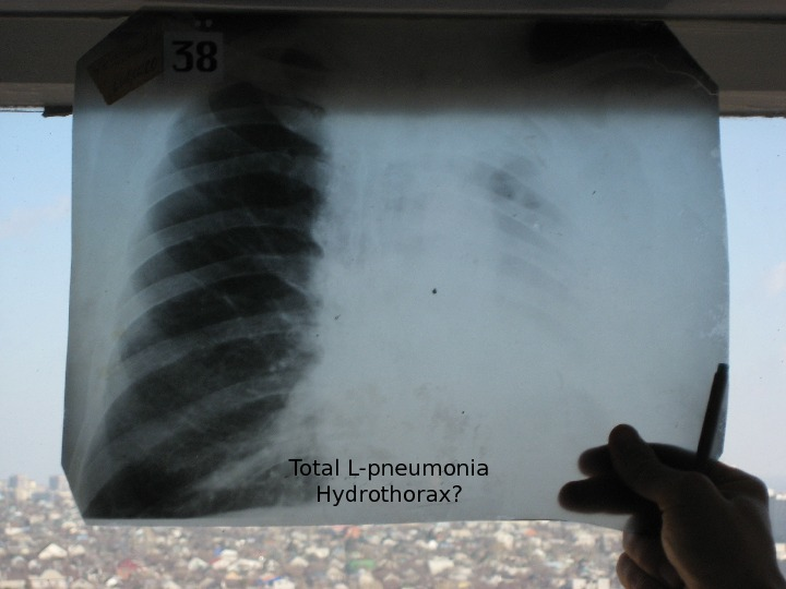 Total L-pneumonia Hydrothorax?