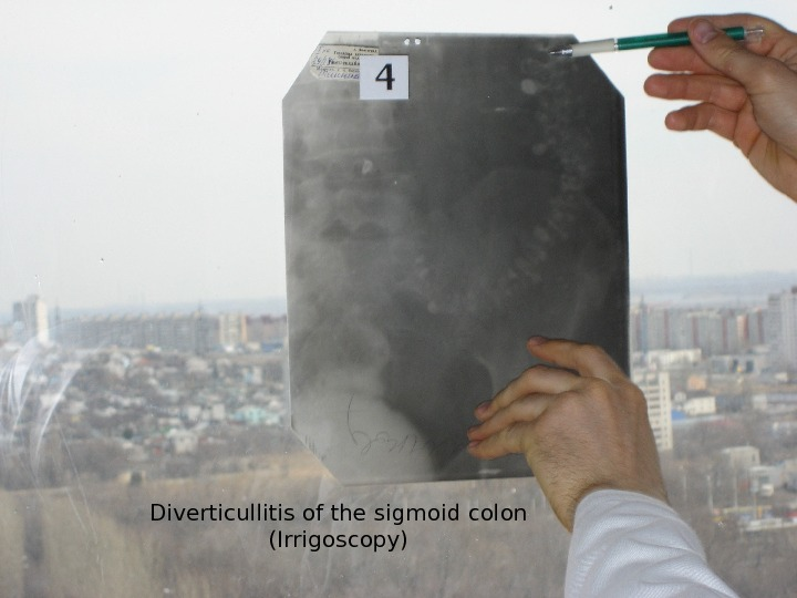 Diverticullitis of the sigmoid colon (Irrigoscopy)