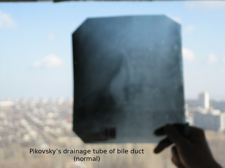 Pikovsky's drainage tube of bile duct (normal)