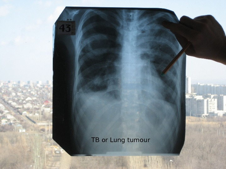 TB or Lung tumour