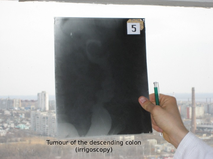 Tumour of the descending colon (irrigoscopy)