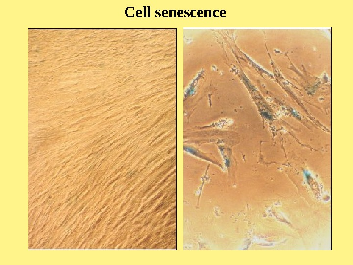 Cell senescence